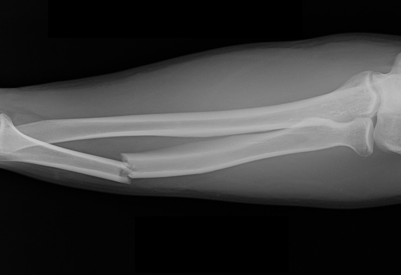Injury Prevention in the Backcountry « Hunting Fit Xray Arm